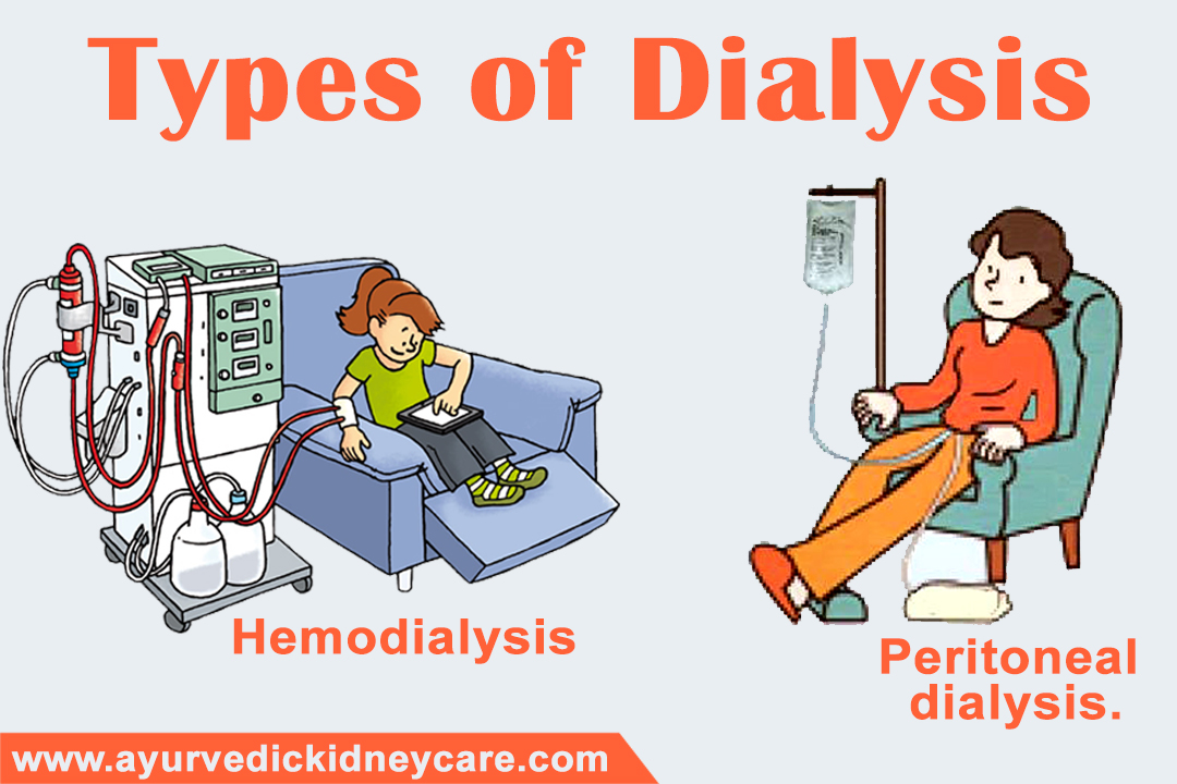 Nutrition Therapy For Dialysis, Ayurvedic Kidney Care | Dr ...