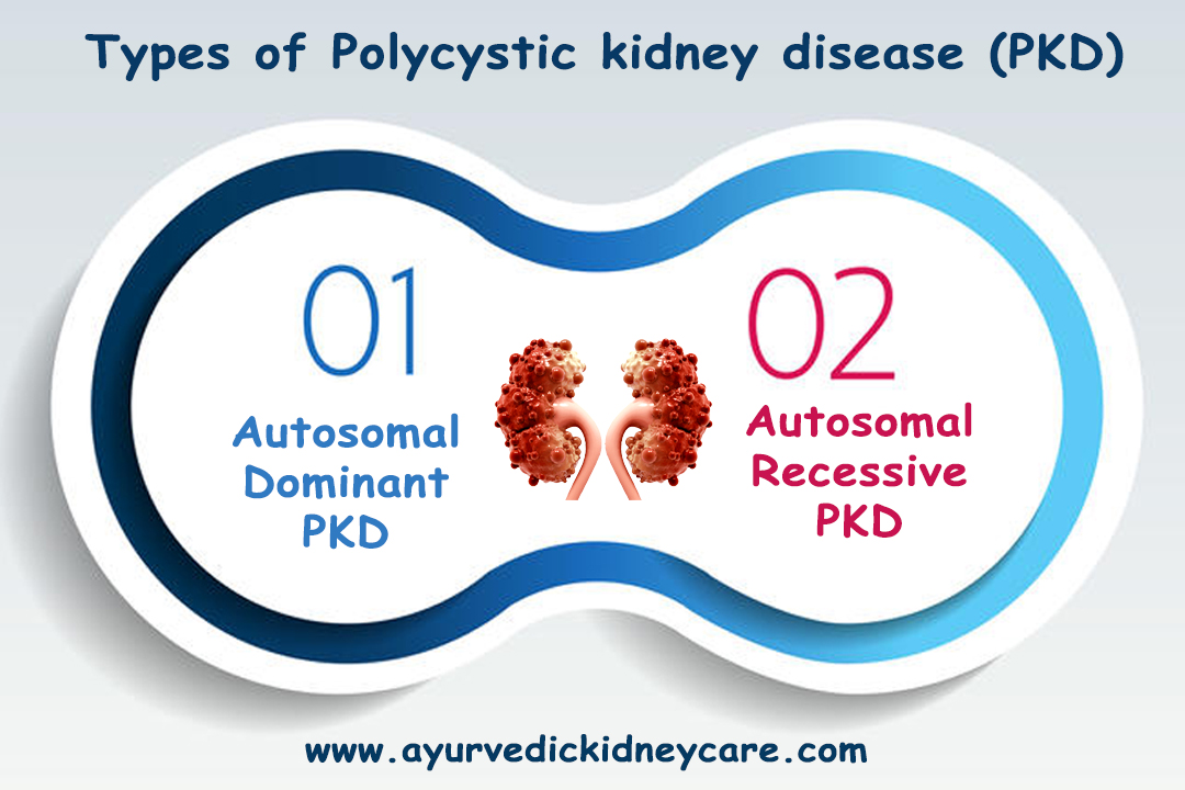 Kidney cyst treatment in Ayurveda