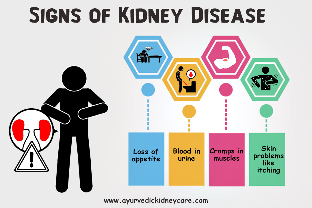 Ayurvedic Doctors for Kidney Failure Treatment in Pennsylvania, Harrisburg