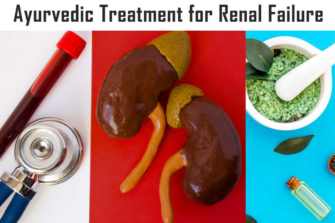 Ayurvedic Treatment for Renal Failure
