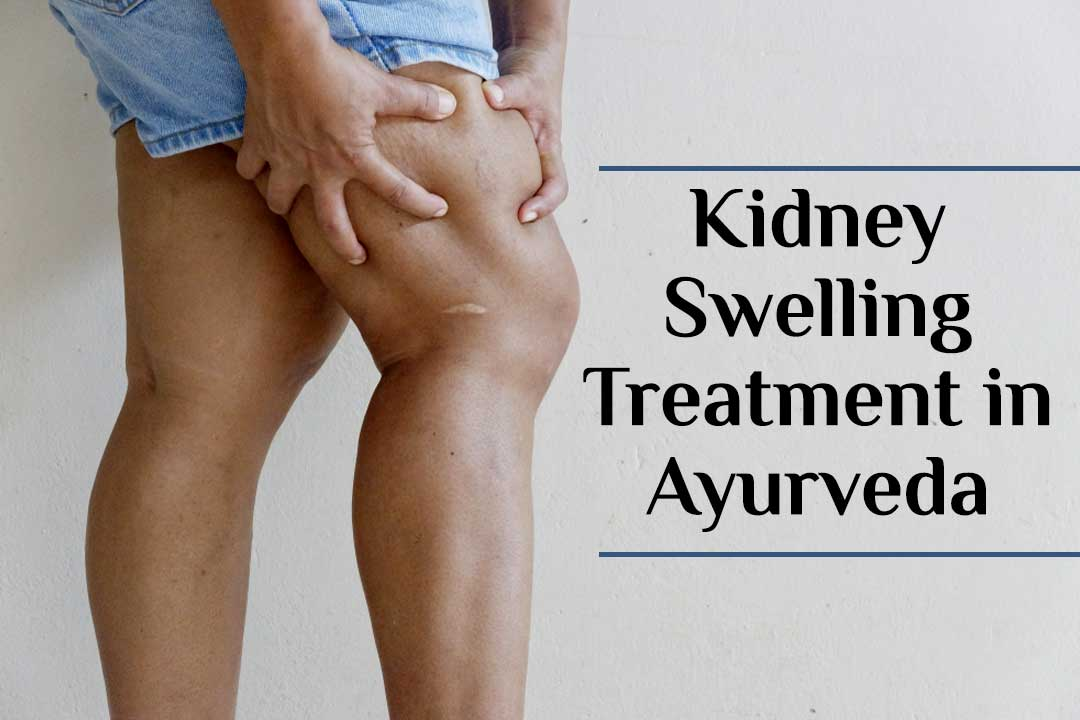 To Resolve Disease Of Leg Kidney Swelling By Ayurveda