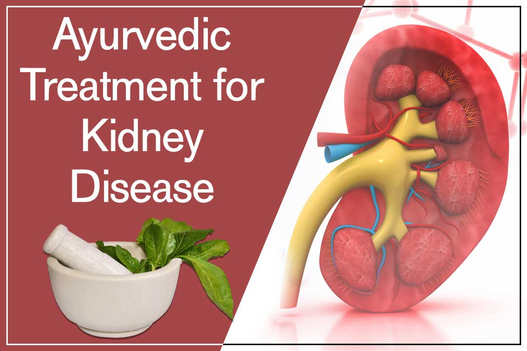 Apply Ayurveda Treatment And Stop Kidney Transplant Easily