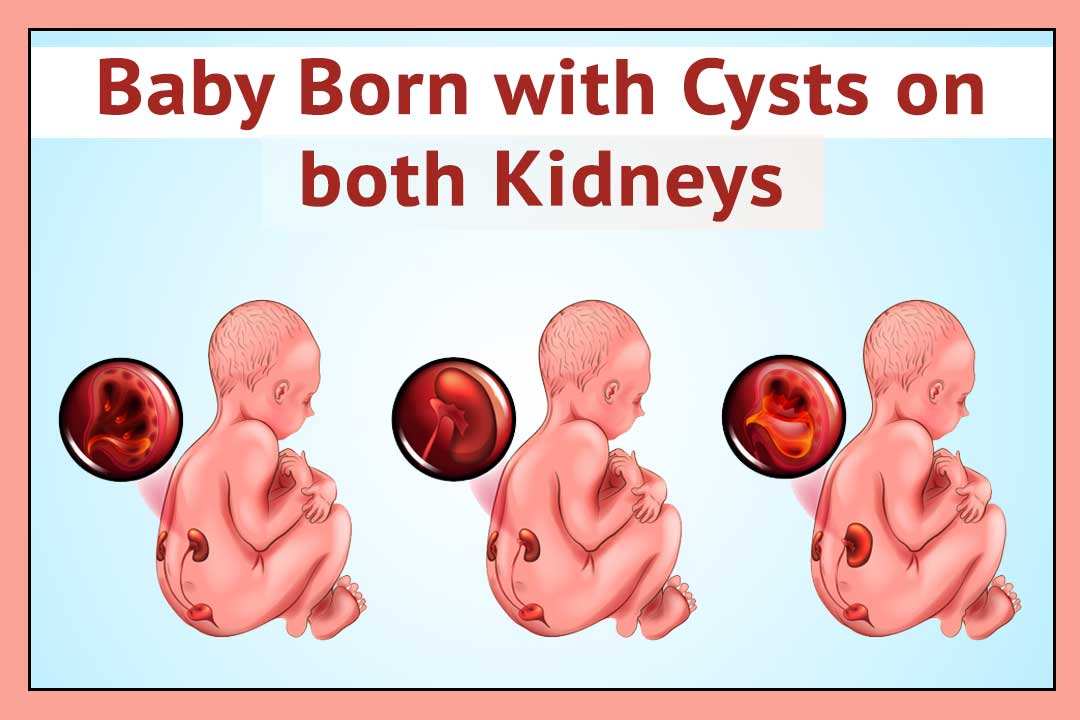 To escape baby born with cysts kidney disease by Ayurveda ...